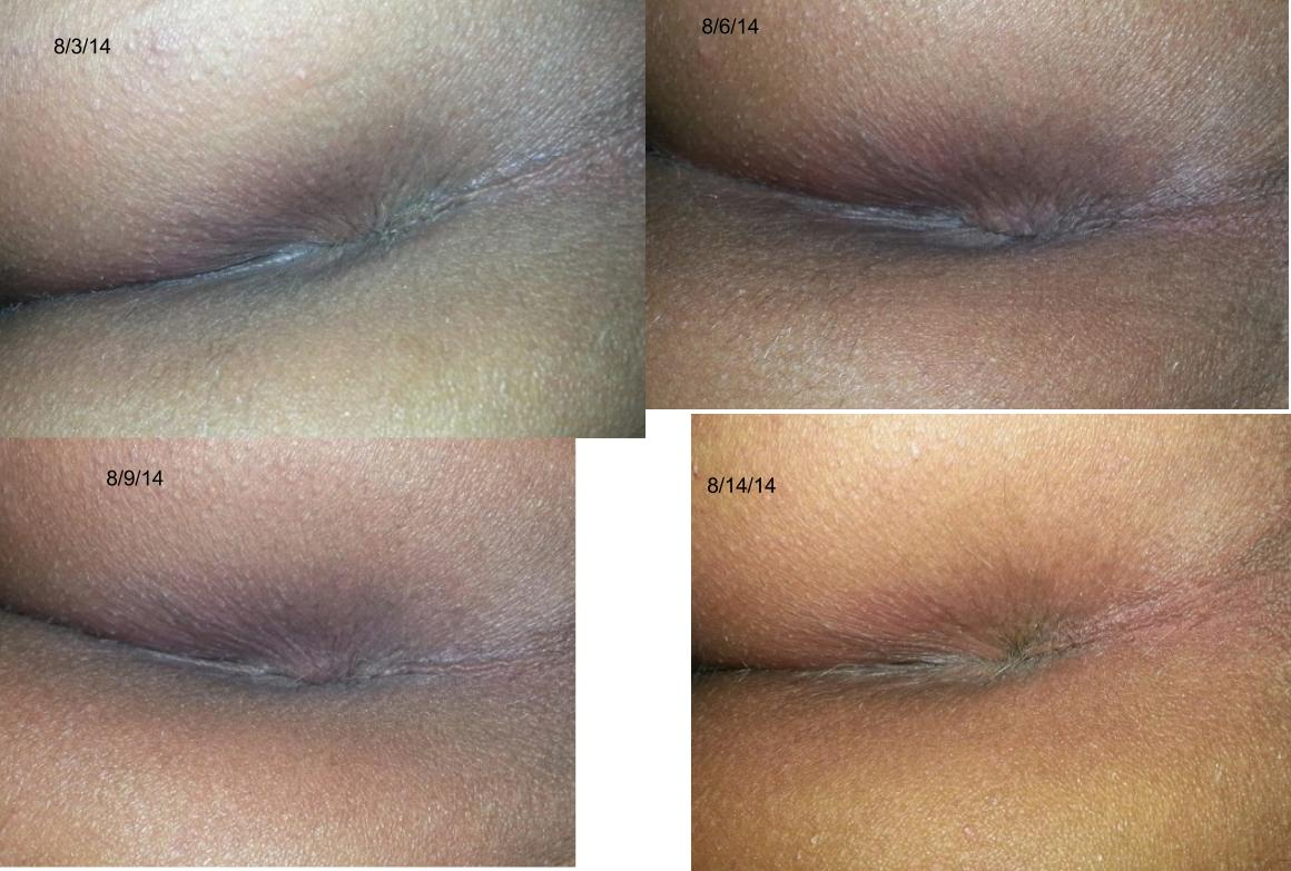 Anal bleaching before and after